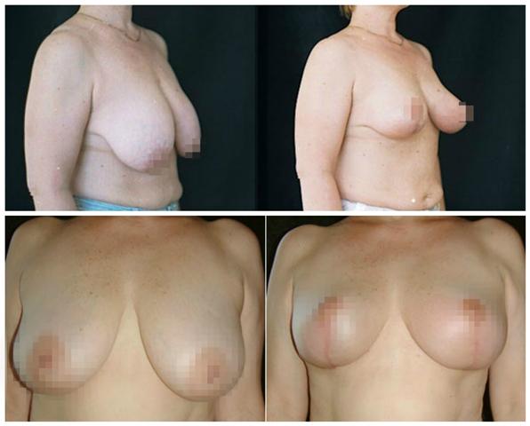 Из-за чего может сместиться имплант груди