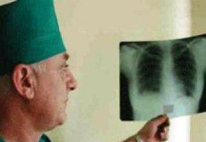 За 2011 год в Бишкеке выявлено более 500 случаев заболевания туберкулезом