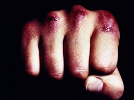 Громко слушал музыку: В Тамчи жестко избили парня