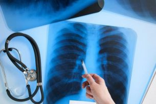 Туберкулез в Кыргызстане: никто не застрахован