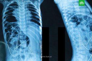Ташкентские врачи извлекли из тела младенца 16 иголок