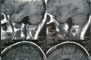 «Таблетки не приведут жизнь в порядок». Невролог о том, как работает наш мозг