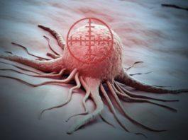 Раковый чек-пойнт: как иммунотерапия позволяет побеждать болезнь