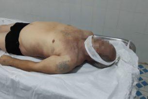 В Самарканде мужчина умер во время допроса в милиции. Родственники утверждают, что его забили до смерти