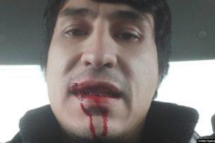 В Андижане блогеру порвали рот за пост о магазине, где торгуют спиртными напитками