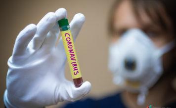 Официальные данные: За сутки коронавирусом в Кыргызстане заразились 304 человека. Шесть больных скончались