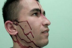 «Мы ещё сведём с тобой счёты». Избитый таджискиский журналист рассказал подробности нападения