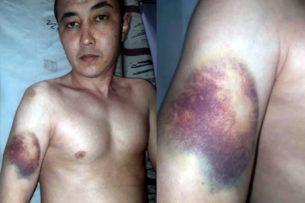 Адвокат: «Получила видеодоказательства избиения Эмилбека Кимсанова в СИЗО-1»