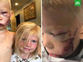 Шестилетний мальчик был готов умереть, спасая сестру от разъяренной собаки