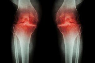 Ученые доказали эффективность лечения артрита с помощью стволовых клеток