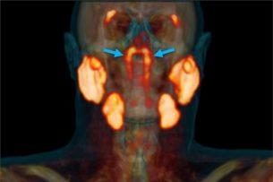 В центре головы человека ученые открыли неизвестный науке орган
