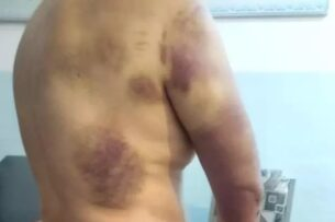 Правозащитник требует документировать пытки кыргызстанцев во время конфликта на границе