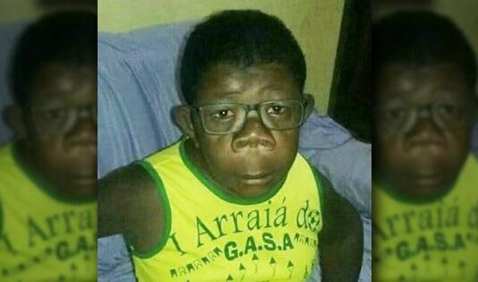 В Анголе обнаружили мальчика, который родился от человека и шимпанзе. Генетики пока спорят