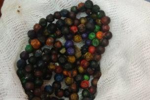100 магнитов извлекли из желудка ребенка в Нур-Султане